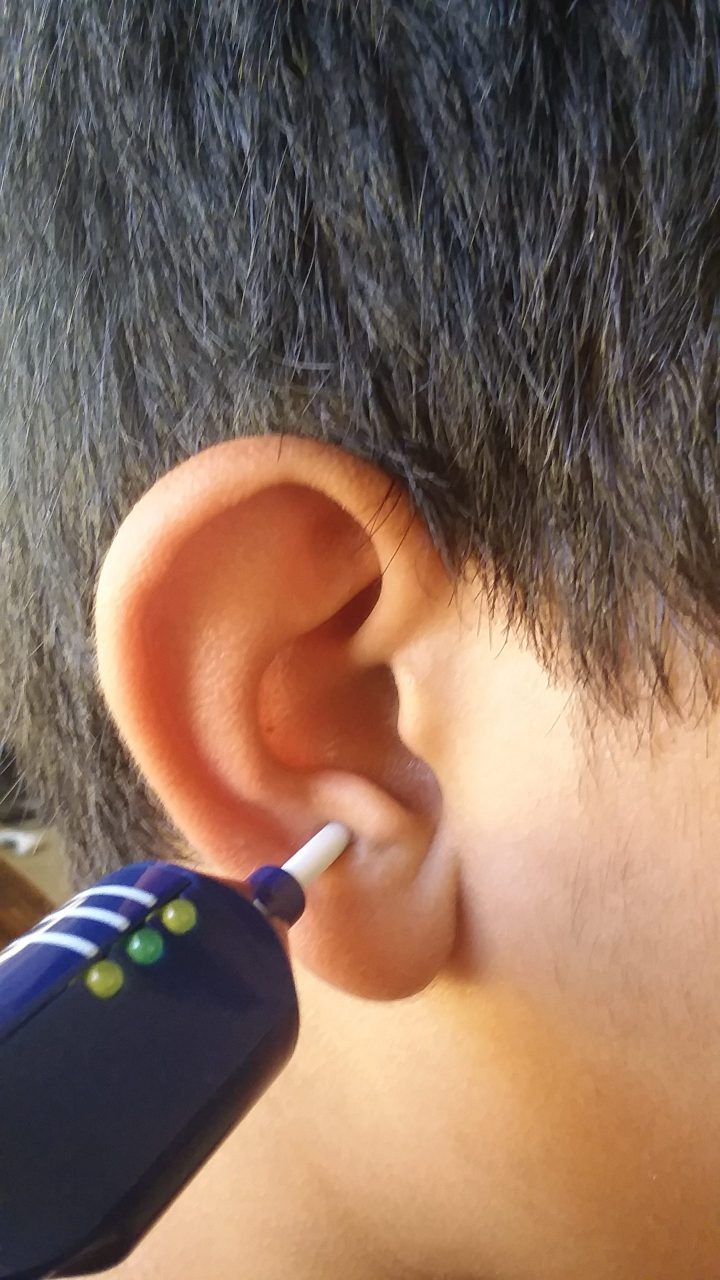 Ear (Auricular) Acupuncture